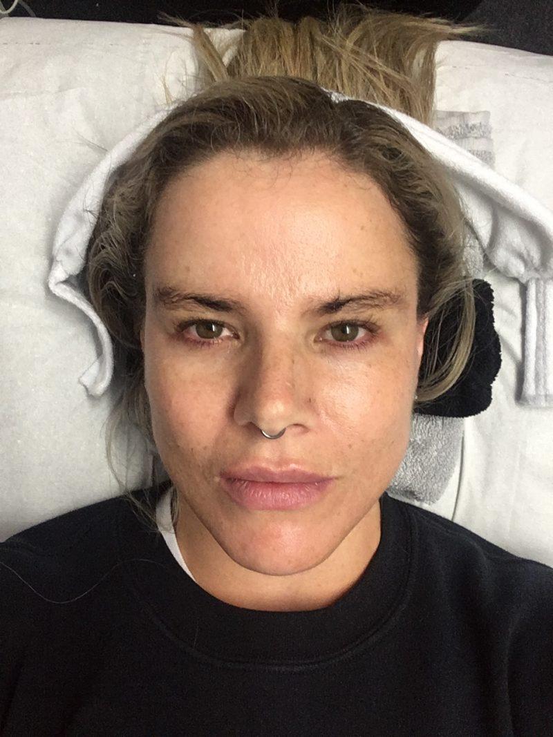 Pixie Tenenbaum Nu Derm Facial Before