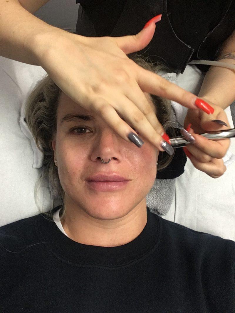 Pixie Tenenbaum Nu Derm Facial Midrodermabrasion