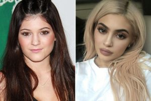 two images of Kylie Jenner side by side showing the pre and post effects of her facial aesthetic treatments